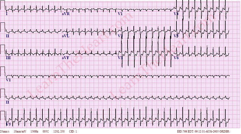 Atrioventricular Nodal Reentry Tachycardia (AVNRT) ECG Example 3