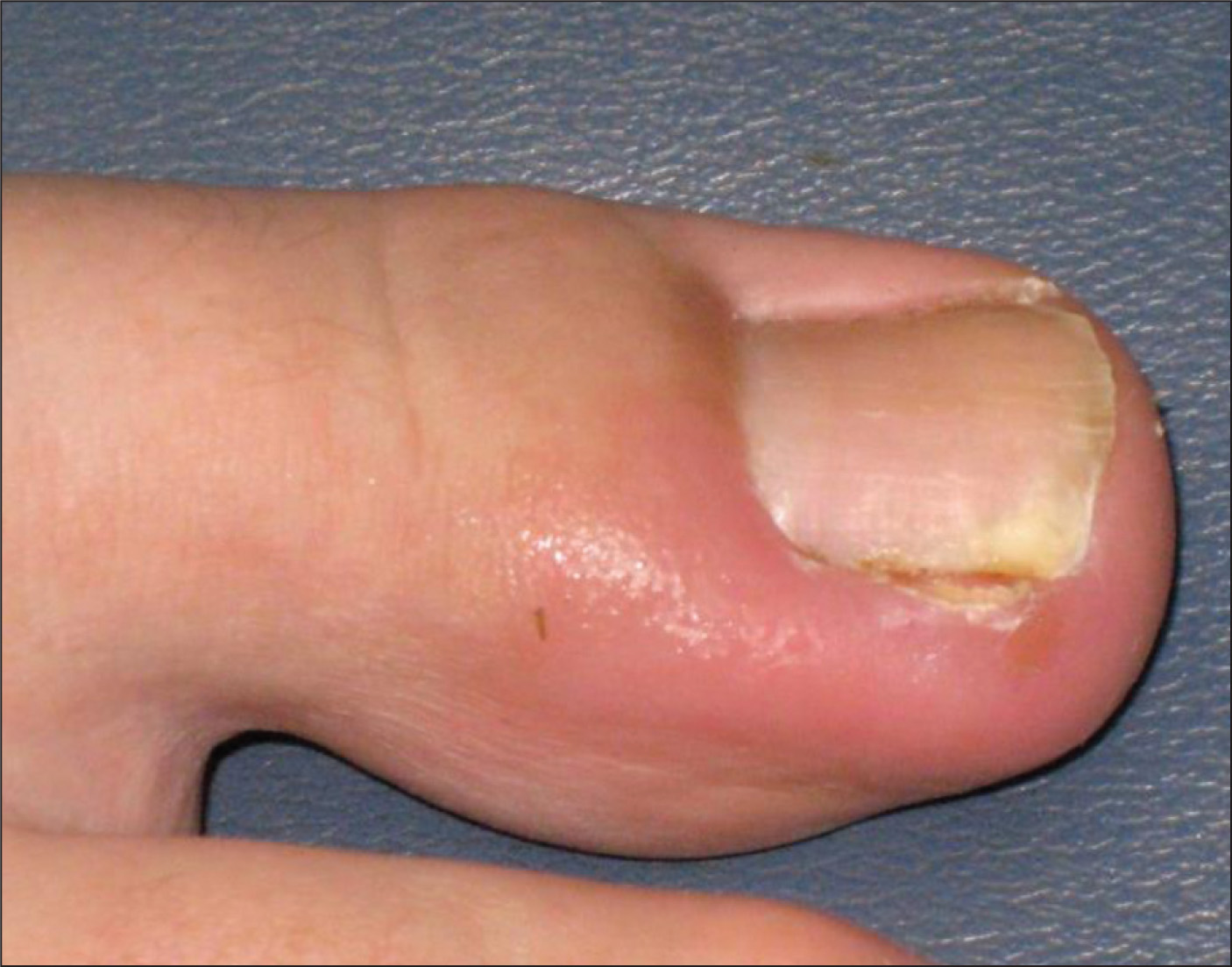 Nailing The Management Of The Ingrown Great Toenail