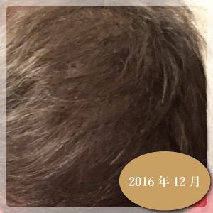 aga-201612-01-01