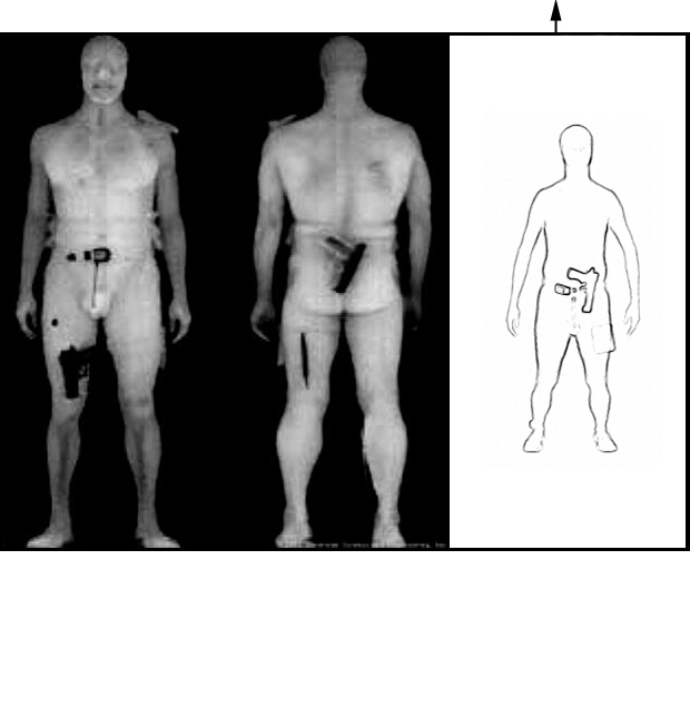 The realistic images to left were formerly supplied by the manufacturer. Today, their scanners use an image processing algorithm to display only the body outline and dense objects. (link)