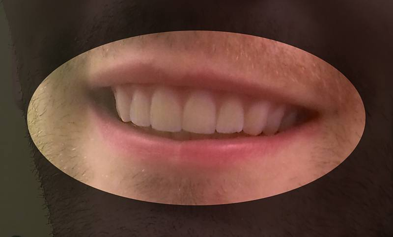 Can You Fix Your Own Teeth with 3D Printed Retainers? | Make: