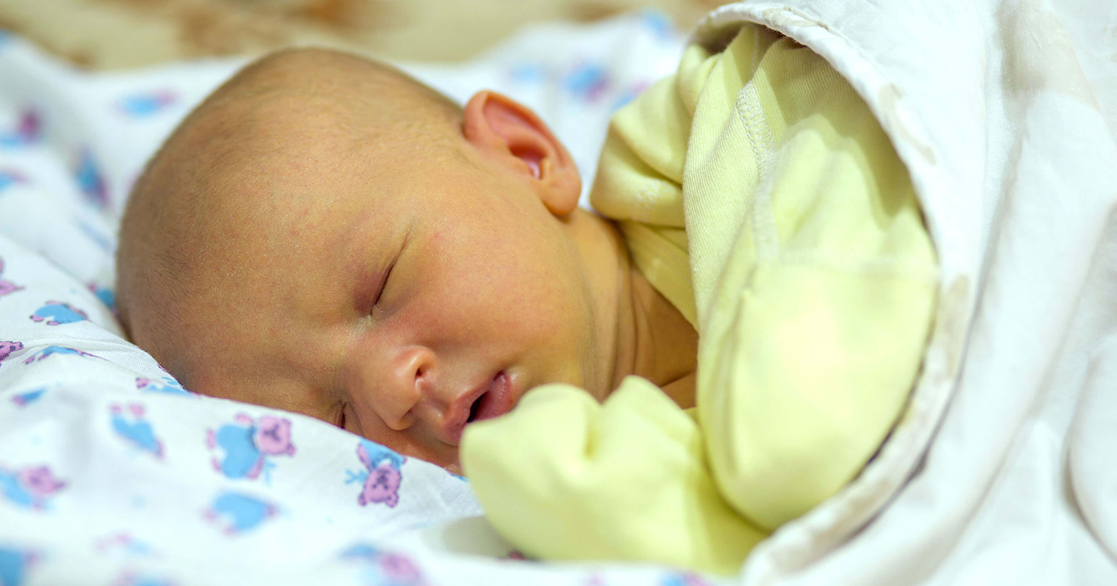 Newborn Babies Jaundice Treatment Natural Ways To Treat Jaundice In Newborn Babies