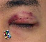 眼瞼下垂手術体験手記