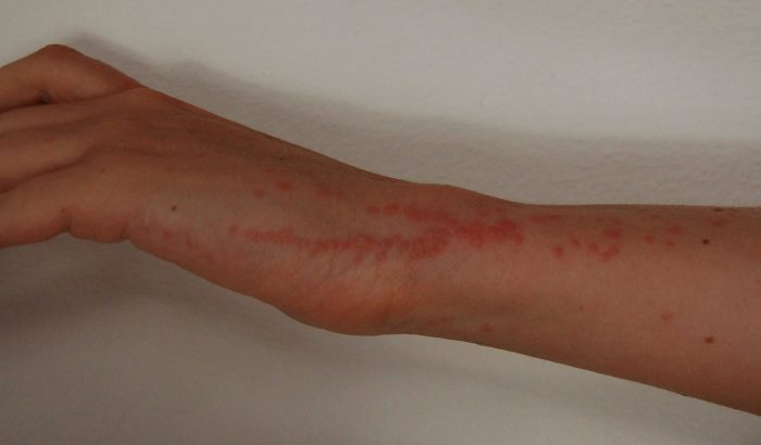Wie Bekommt Man Bettwanzen Bed Bug Bites Treatment - Cure The Bites And Control The