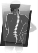 Terrible Costs of Spinal Cord Injuries – Society, Family & Patient