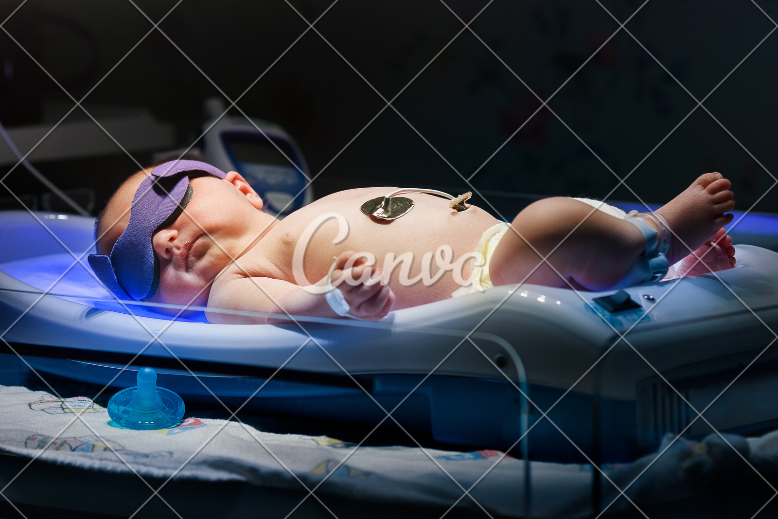 Newborn Babies Jaundice Treatment Newborn Baby With Jaundice Getting Ulta Violet Phototherepy