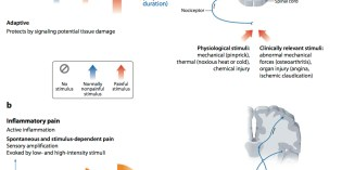 Stimulus-Dependent and Spontaneous Pain
