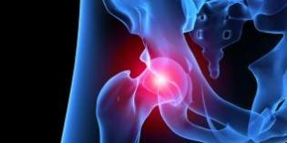 Clinical Tests for the Hip – Labral Tears, Hip Impingement, Intra-articular Hip Pathologies.