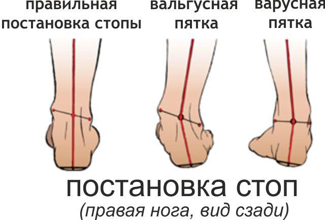 Типы деформации стопы.