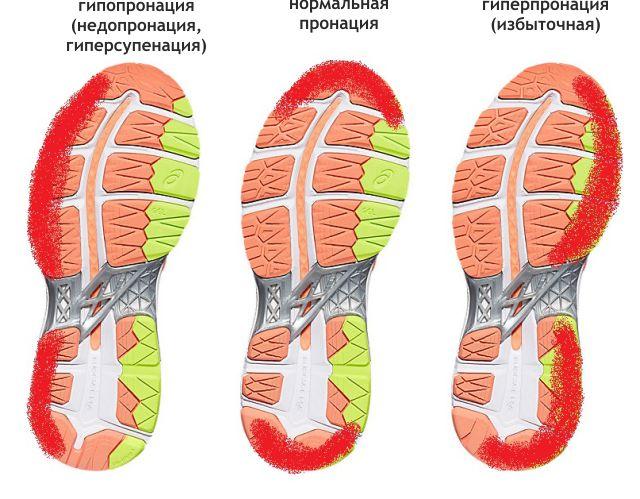 пронация кроссовок