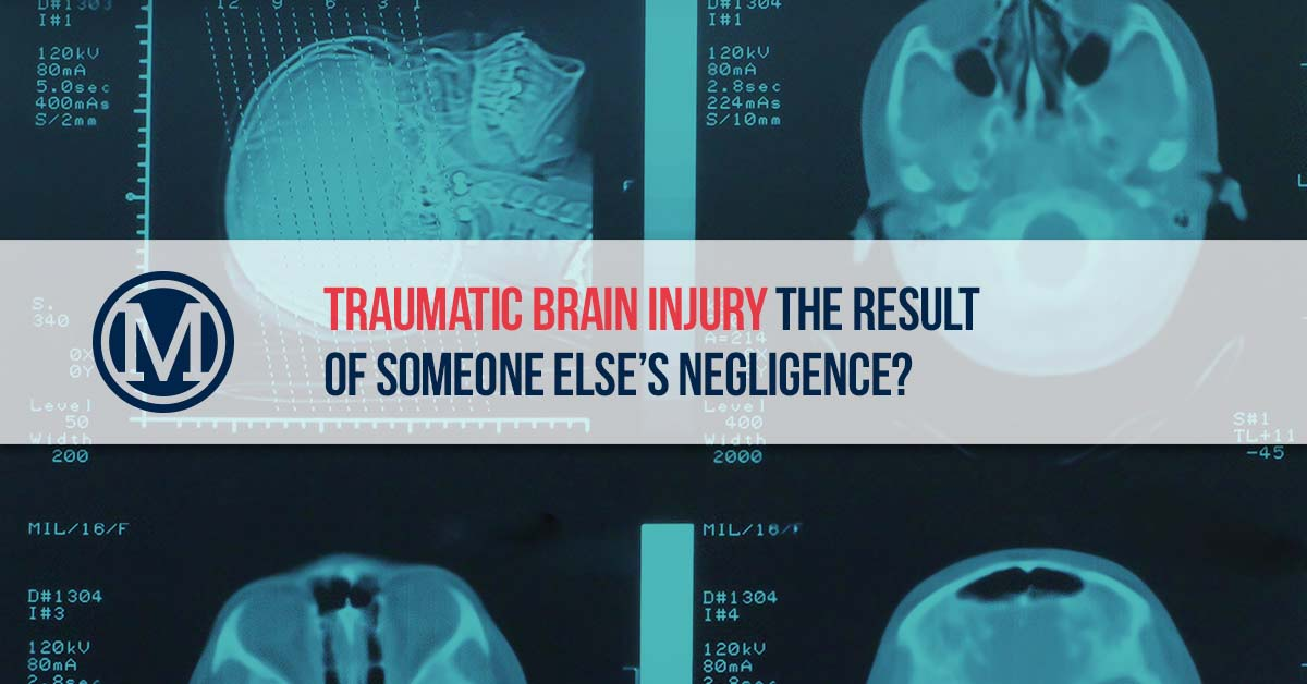Workers Compensation Statute Of Limitations By State Traumatic Brain Injury Lawyers Mcdonald Law Firm