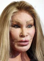 Plastic Surgeries Gone Wrong