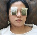 Plastic Surgery To Get Rid Of Bags Under Eyes