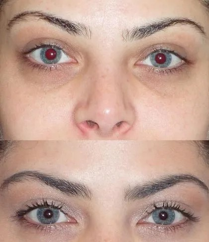 The Tear Trough Plastic Surgery Treatment Gets Rid Of Dark Under Eye Circles Allure