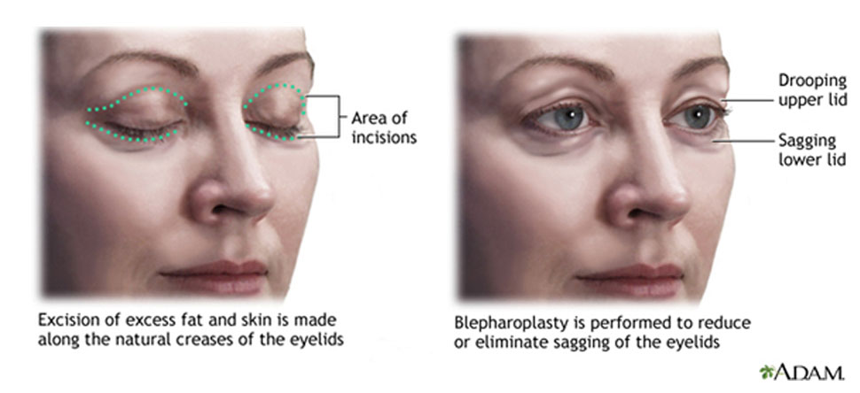 Eyelid Surgery Healthcare Baylor College of Medicine Houston - ptosis surgery