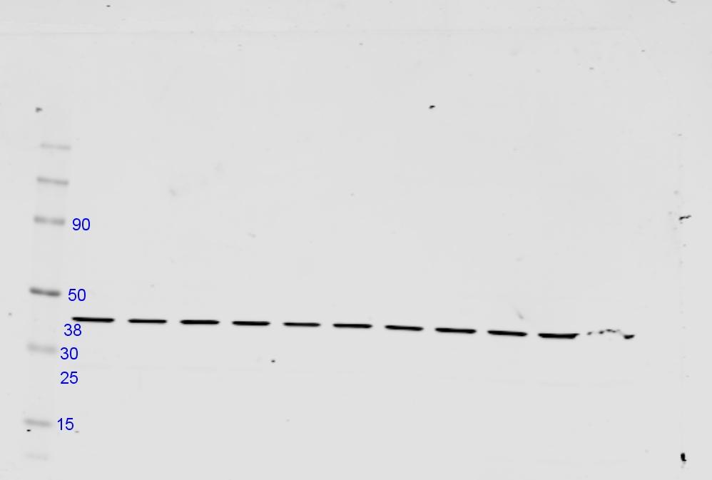 Beta Actin As A Western Blot Loading Control Biocompare Antibody