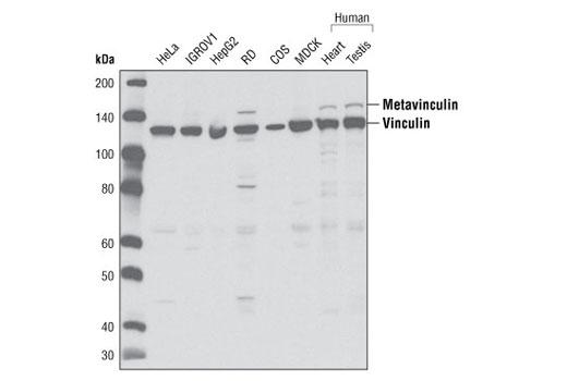 Polyclonal Antibody - Vinculin Antibody - Western Blotting, UniProt