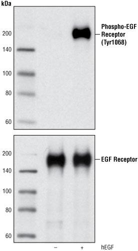 Antibody Validation for Western Blotting CST - western blot