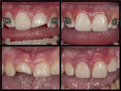 Using Dental Composite to Quickly Repair Class IV Fractures