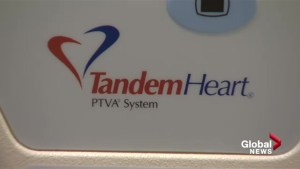 'Tandem Heart' helps make high-risk heart patients strong enough for surgery