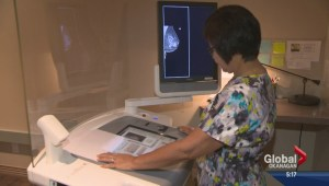 New technology in Kelowna combating the fight against breast cancer