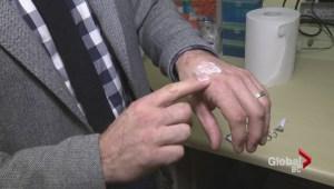 UBC develop anti-scarring drug