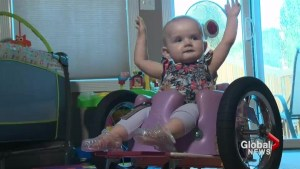 Customized wheelchair helps infant get around