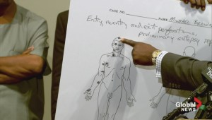 Michael Brown private autopsy results
