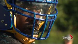 UBC's football team tests out new mouth guard technology