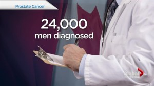 How prostate cancers is treated may depend on where you live