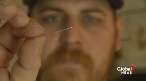 'It stuck me in the tongue': Calgary parents find needle in bacon
