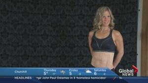 Winnipegger bares transplant scars to inspire organ donations