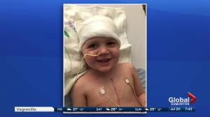 Stollery Children's Hospital: Elias, 5, underwent heart, brain surgery at a young age