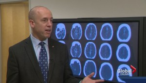 New stroke procedure developed in Calgary