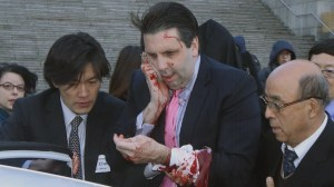 U.S. ambassador to South Korea attacked by knife-wielding man