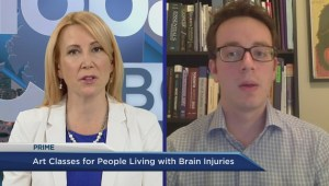 Art therapy improving brain injuries