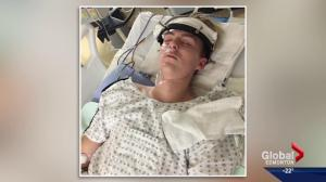 Alberta teen faces long road to recovery after breaking neck at a trampoline park