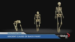 Ancient source of back problems