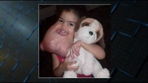 3-year-old with disfiguring tumour in face gets life-changing surgery