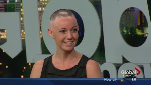 Amanda Greenough on alopecia