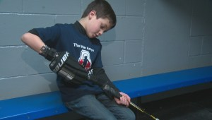 Edmonton hockey player with hand disability feels complete with new prosthetic