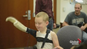 Grad students create 3D-printed arm for boy