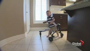 Ontario family has to raise $100,000 for surgery so their boy can walk