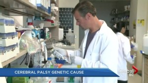 Cerebral palsy genetic cause