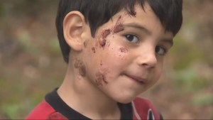 Dad alleges daycare left multiple scabs, cuts after using scrub brush on son's face