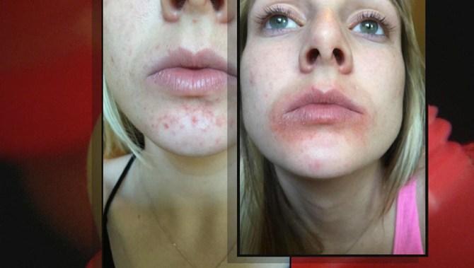 Popular celebrity-endorsed lip balm EOS subject of class ...