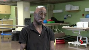 Badly burned man has remarkably positive outlook on life