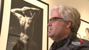 New photo exhibit shows people with spina bifida in the nude