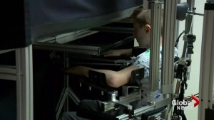 Advance in technology to help young stroke patients