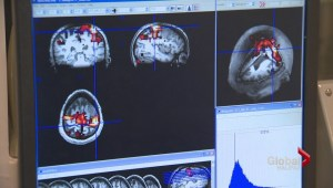 New MRI technology developed in Halifax